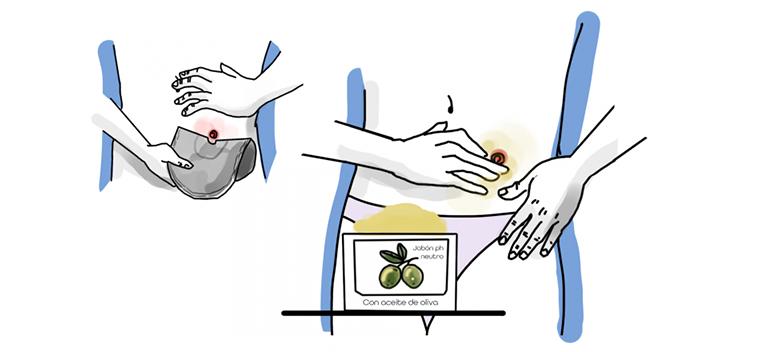 Estudian la eficacia de cosméticos fabricados con AOVE sobre la piel de personas con ostomía digestiva
